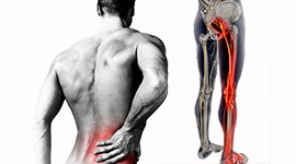 LOVER BACK PAIN /SCIATICA